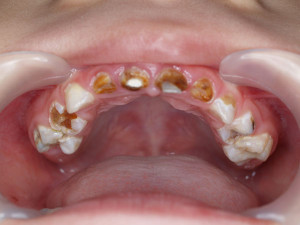 Early Childhood Caries Oralcare